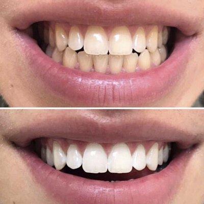 curaprox,biw,牙膏,牙刷,護齒,齒,瑞士,牙刷界愛馬仕
