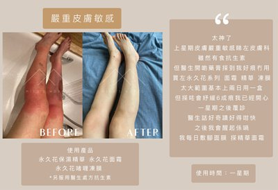 miyasworks,miya's works,永久花,淡印,舒緩敏感,濕疹,玫瑰痤瘡