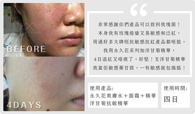 暗瘡,背痘,痕癢,過敏,口罩,了解自己的膚質,膚質,油性,乾燥,面油,皮膚問題,混合性肌膚,T字位,毛孔阻塞,暗瘡,黑頭粉刺,毛孔粗大,乾燥,細紋,敏感,多餘油脂