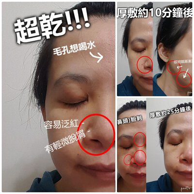 CEBELIA、過敏、曬傷、修復、寡胜肽瞬效修復霜