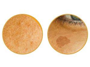 淨化現有斑點並阻斷皮膚下方黑色素的形成,特有美白成分讓肌膚恢復透亮淨白
