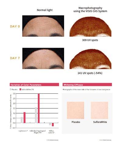 瑞士臨床證實(18E1457),因黑色素引起的色斑,黑斑和老人斑,在做好防曬及早晚使用阻黑淨斑精華七日後,平均減少 29% 的斑點,其中更有受試者明顯淡化 54% 暗沉色塊