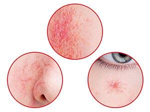 淨化肌膚泛紅,紅血絲,蜘蛛網狀擴張,特有抗紅成分讓肌膚恢復靚白,彈性與光澤