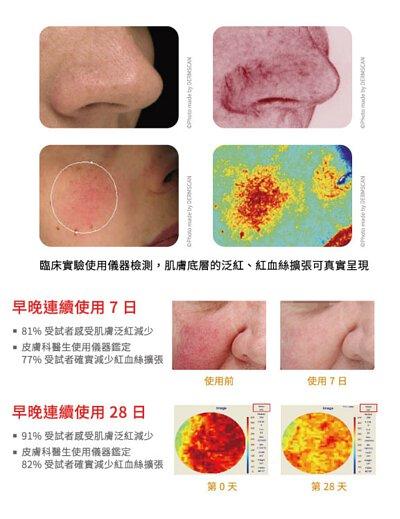經皮膚科醫生以專業儀器檢測 RBC 濃度,早晚使用抗紅修護精華二十八日後,數值由 345A.U 降低至 287A.U 高達 82% 確實淨化肌膚,且 91% 受試者感到肌膚泛紅減少