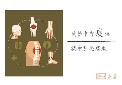 痛風,關節痛,風濕,退化性關節炎