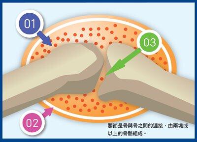 介紹關節結構,關節腔、關節囊及關節軟骨如何互相影響引致關節骨痛