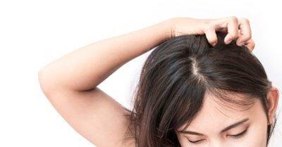 頭皮屑狂掉,可能是「脂漏性皮膚炎」上身!認識頭皮脂漏性皮膚炎如何治療