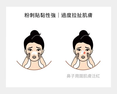 粉刺貼黏性強 過度拉扯肌膚