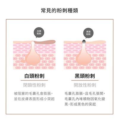 常見的粉刺種類