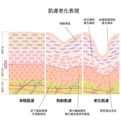 肌膚老化現象