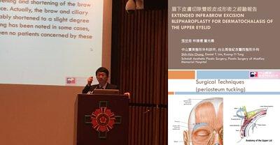 張世幸主任台灣整形外科醫學會年會論文報告