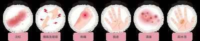 手足症候群症狀特徵,癌症