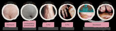 化療造成的皮膚症狀