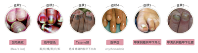 化療造成的指甲症狀