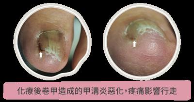 化療後卷甲造成的甲溝炎惡化