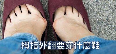 拇指外翻適合穿什麼鞋