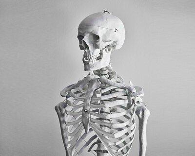黑豆比起菠菜的鈣含量高出1.5倍,鈣作為骨骼組成的材料,不但有助組成結實骨骼,同時也預防骨質疏鬆。異黃酮亦能補充女性荷爾的減少,抑制骨頭分解,從而打造結實骨骼,改善關節痛及腰痛等症狀。