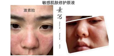 敏感肌肤修护原液
