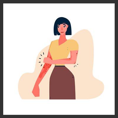 eczema, 濕疹, 皮膚炎, 痕癢, psoriasis, dry, itchy, rashes